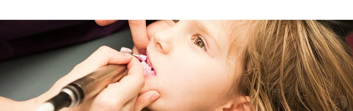 ¿Qué tan pronto es demasiado pronto para un examen dental? (1)